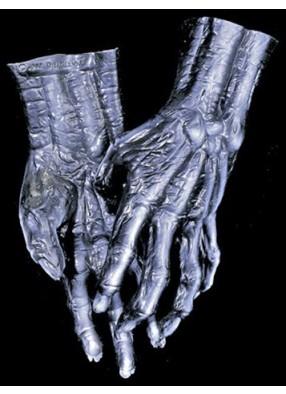 Черные руки скелетона