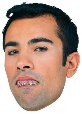 Кривые зубы с брекетами