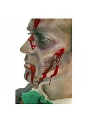 Накладная рана на лицо