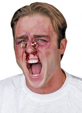 Накладная рана Пробитый нос