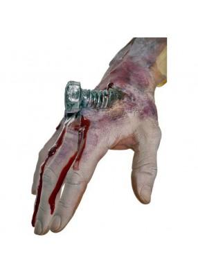 Накладная рана с шурупом