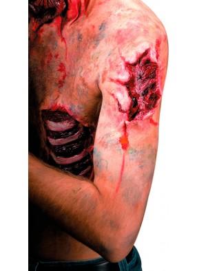 Накладная глубокая рана