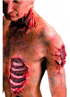 Накладная рана с открытыми ребрами