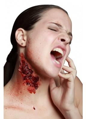 Накладная рана шеи