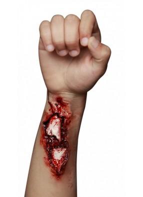 Накладной открытый перелом руки