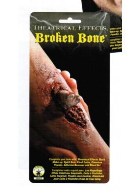 Торчащая кость из раны