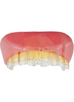 Золотые зубы гангстера с бриллиантами