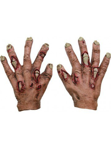 Руки в язвах