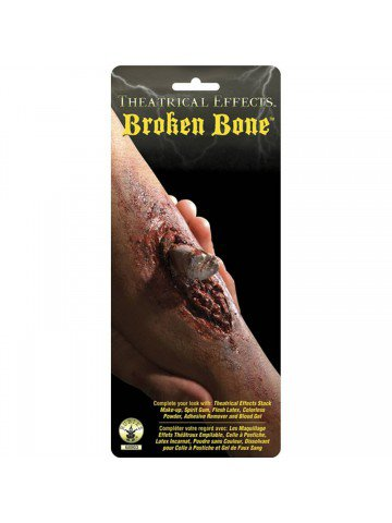 Сломанная кость